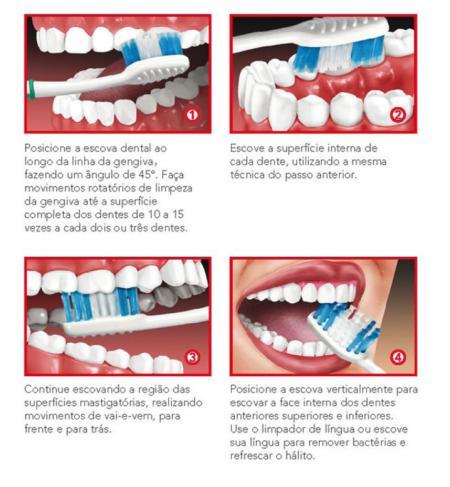 e215b04b1 FORÇA EXCESSIVA NA ESCOVAÇÃO CAUSA SENSIBILIDADE DENTAL Muita força na  escovação dos dentes pode deixá-los sensíveis