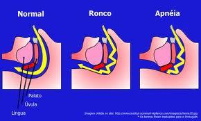 ronco1