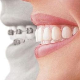conheca-os-aparelhos-que-auxiliam-em-sua-saude-bucal